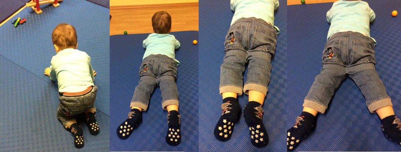 Vier Bilder eines Hypotones Kind krabbelt mit Hilfe einer Hose, deren Beine an den Oberschenkeln zu einem Drittel zusammengenäht sind