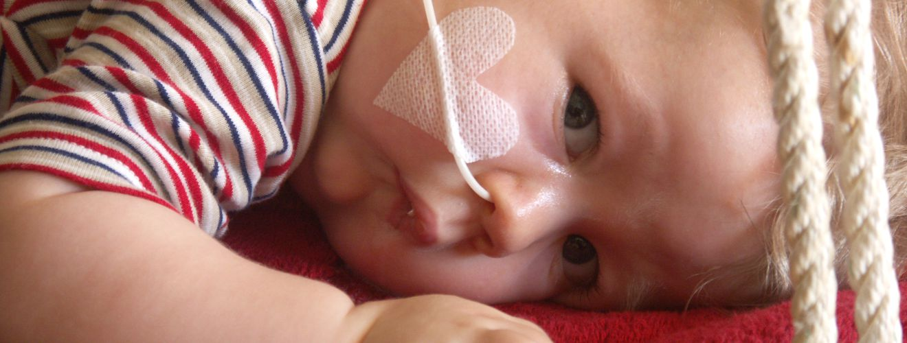 Felix, ein Kleinkind, liegt auf dem Bauch und guckt in die Kamera. Er hatte eine spinale Muskelatrophie und deshalb auch eine Sonde in der Nase.