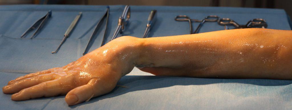 Ein präparierter Arm liegt auf einem Seziertisch